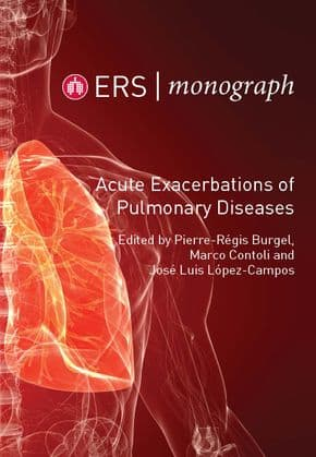 Acute Exacerbations of Pulmonary Diseases