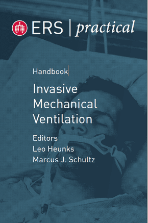 ERS Practical Handbook of Invasive Mechanical Ventilation